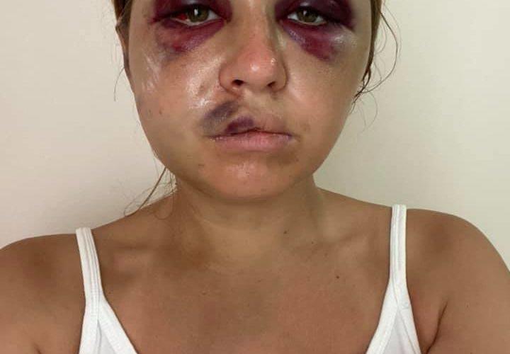 «Укрзалізниця» просить вибачення в потерпілої від нападу та спроби згвалтування Анастасії Лугової