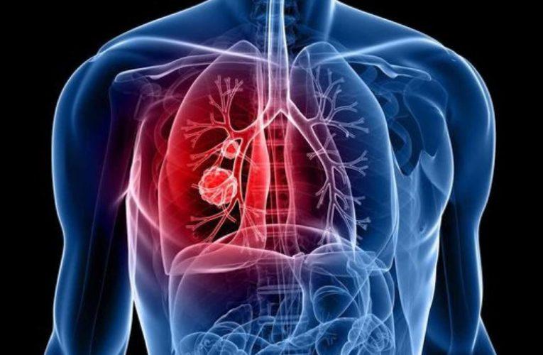 Украинцы стали чаще болеть туберкулезом