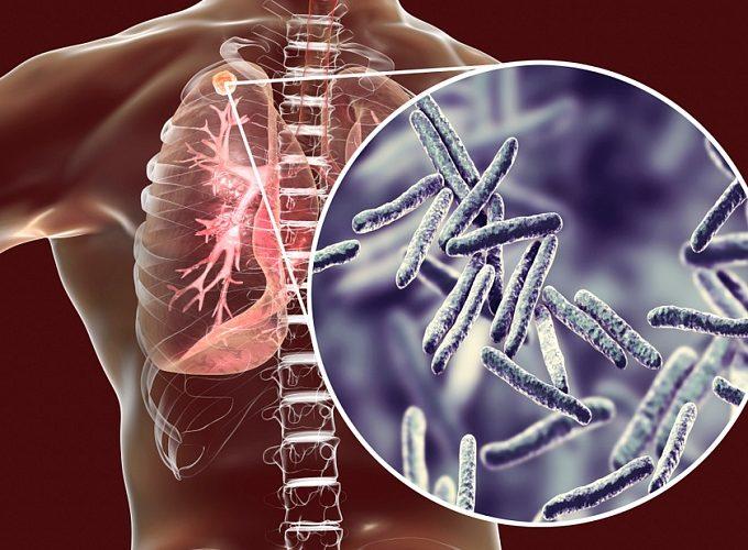 Украина проигрывает борьбу с туберкулезом