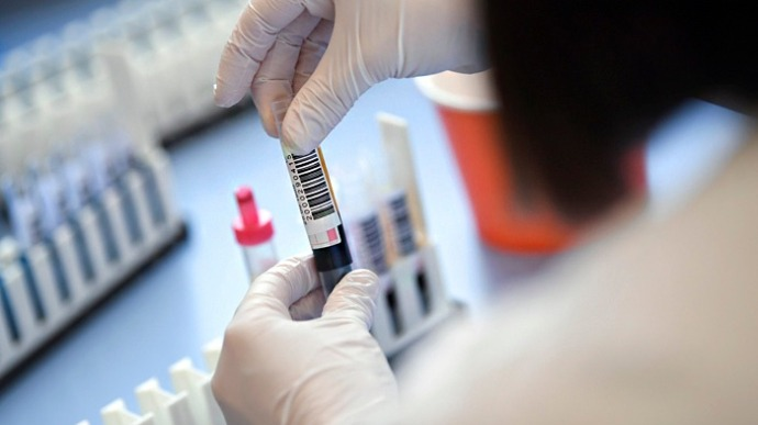 В мире зафиксирован резкий скачек заболеваний коронавирусом