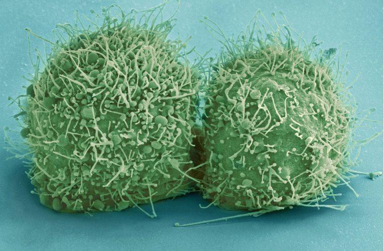 Онкологи назвали главные причины появления рака