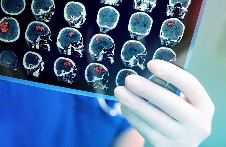 Невролог рассказала, как избавиться от «тумана в голове» после коронавируса