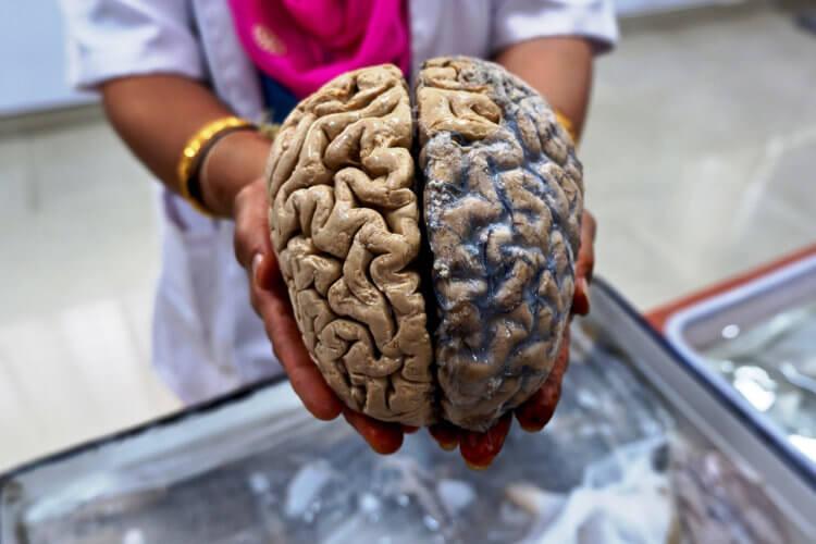 Медики объяснили, как замедлить старение мозга