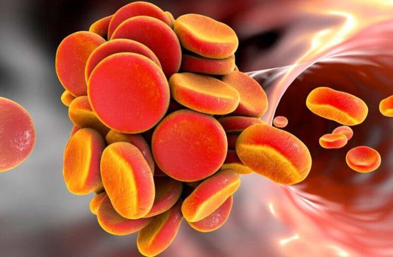 Ученые установили причины возникновения тромбоза после вакцинации AstraZeneca